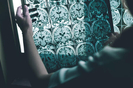 Understanding Alzheimer's Disease: Know the Early Signs and Symptoms
